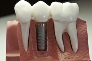 dental implants scottsdale az